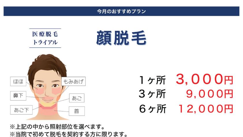 キャンペーン:顔脱毛